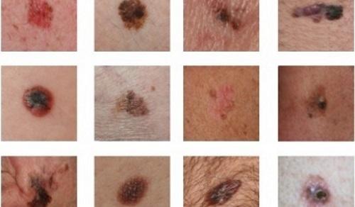 Ung thư tế bào hắc tố có thể tiến triển từ một số tổn thương lành tính trên da