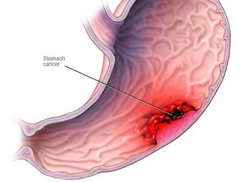 Dấu hiệu ung thư dạ dày giai đoạn đầu và cách điều trị hiệu quả