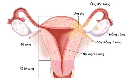 Các dấu hiệu của bệnh ung thư tử cung