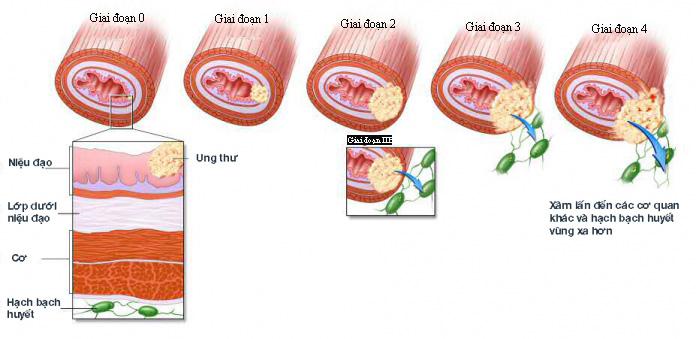 Ung thư thực quản có 4 giai đoạn