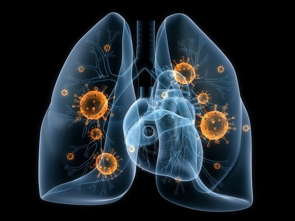 Các giai đoạn của ung thư phổi. Dấu hiệu cảnh báo mắc bệnh K phổi