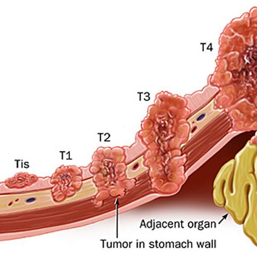 Các giai đoạn phát triển ung thư da dày