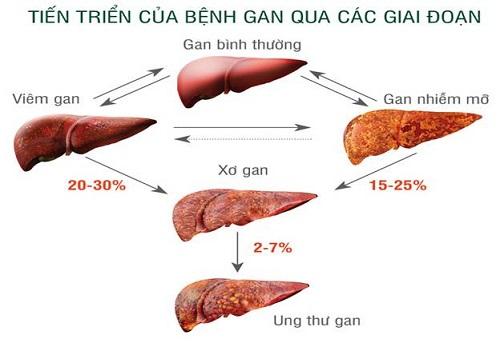 Các giai đoạn tiến triển của bệnh ung thư gan