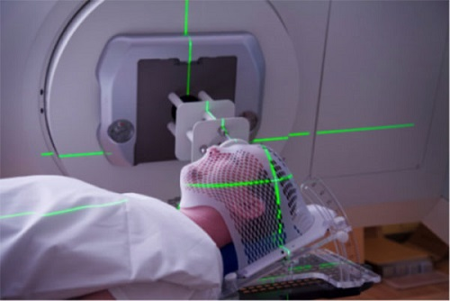 Điều trị ung thư vòm họng giai đoạn cuối bằng liệu pháp kết hợp