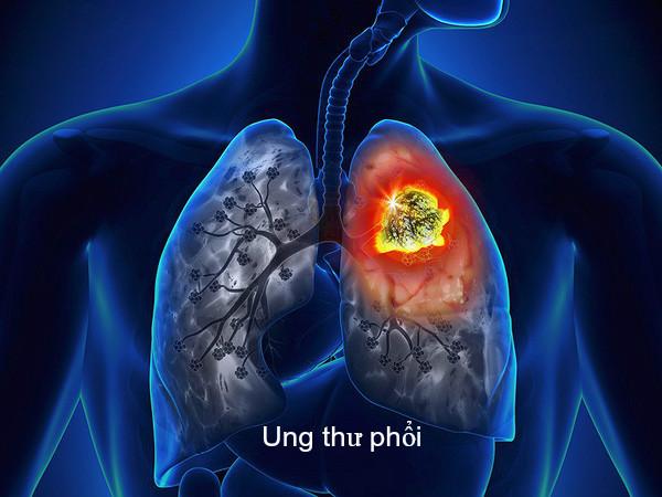 Điều trị ung thư phổi điều trị ung thư bằng phương pháp nào tốt nhất?