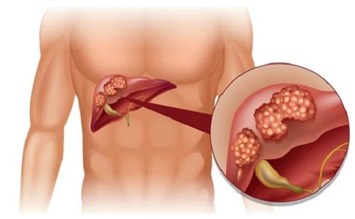 Cây thuốc nam chữa bệnh ung thư gan