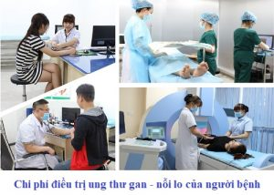 Chi phí điều trị ung thư gan? Các phương pháp chữa ung thư gan