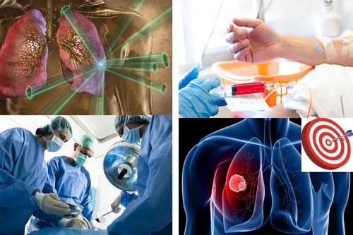 Chi phí chữa ung thư phổi