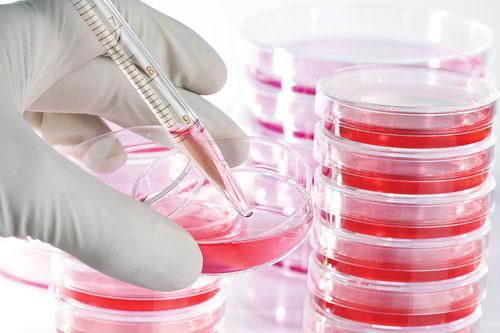 Chữa ung thư bằng tế bào gốc hiệu quả như thế nào?
