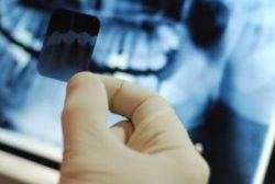 Chụp X-quang chẩn đoàn và điều trị ung thư xương