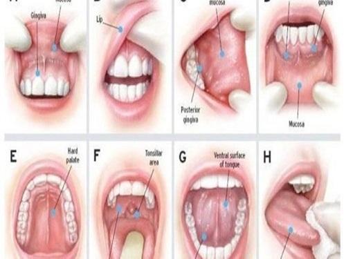 Dấu hiệu bất thường về vòm miệng