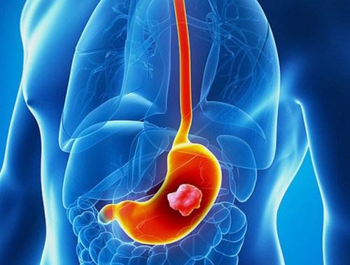 Ung thư dạ dày nguy hiểm tới tính mạng con người