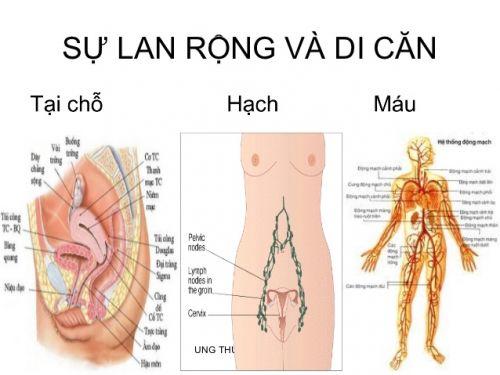 Di căn hạch trong ung thư cổ tử cung