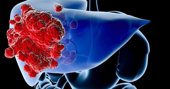 Điều trị ung thư biểu mô tế bào gan bằng phương pháp nào?