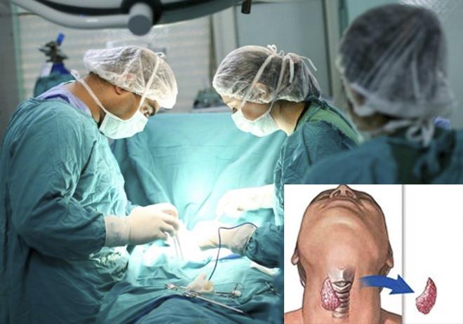 Phẫu thuật là phương pháp điều trị ung thư tuyến giáp phổ biến