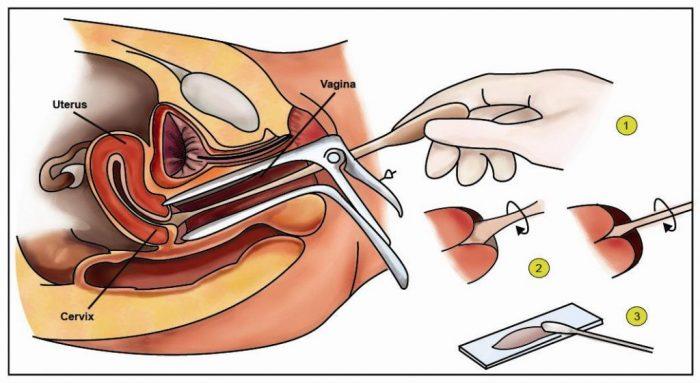 Giá xét nghiệm ung thư cổ tử cung như thế nào và cách chuẩn đoán được nhiều người quan tâm.