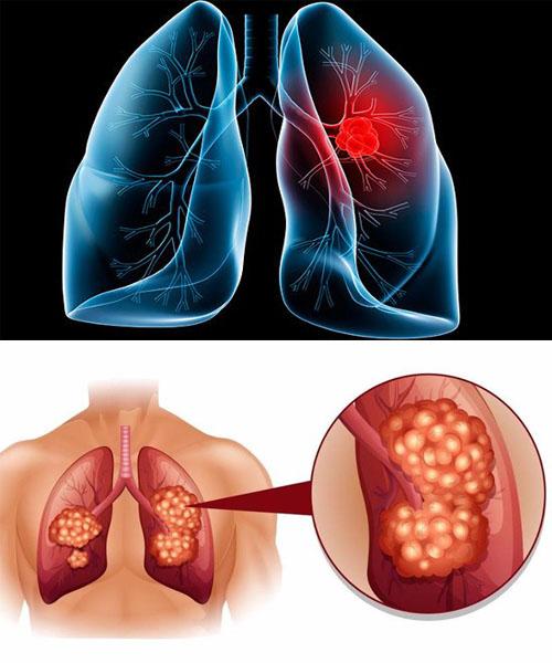 Hình ảnh cho bệnh ung thư phổi - Dấu hiệu nhận biết và cách điều trị
