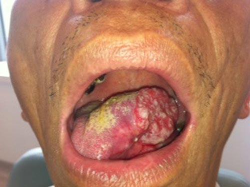 Hình ảnh cho ung thư lưỡi ở giai đoạn nặng