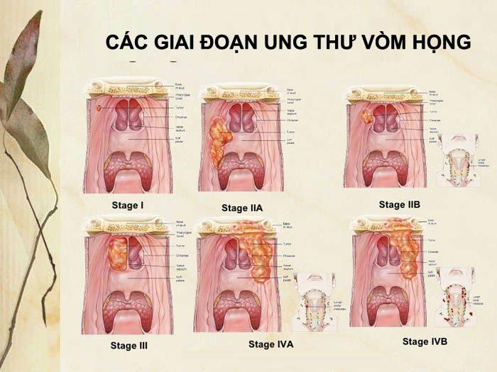 Các giai đoạn của hình ảnh ung thư cổ họng