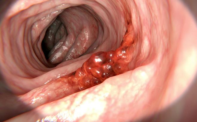 Hình ảnh ung thư dạ dày giai đoạn cuối và phương pháp điều trị phù hợp