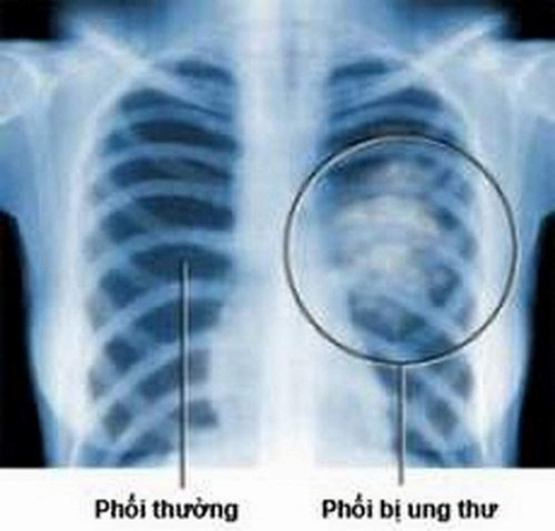 Hình ảnh ung thư màng phổi