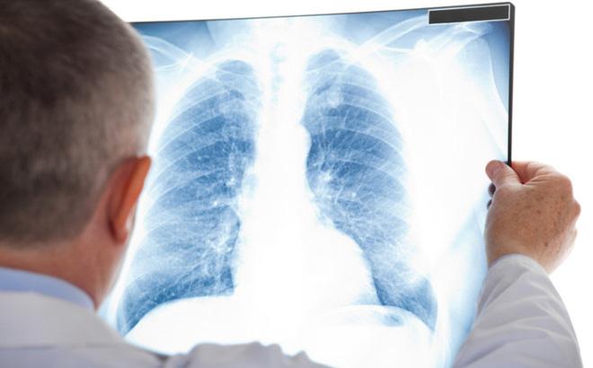 Hình ảnh ung thư phổi trên XQ giúp bạn biết được chính xác về bệnh tình của mình