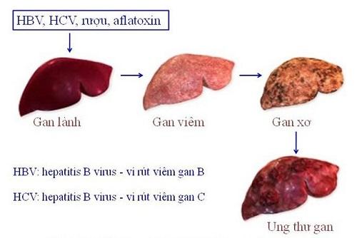 Hình ảnh về bệnh ung thư gan