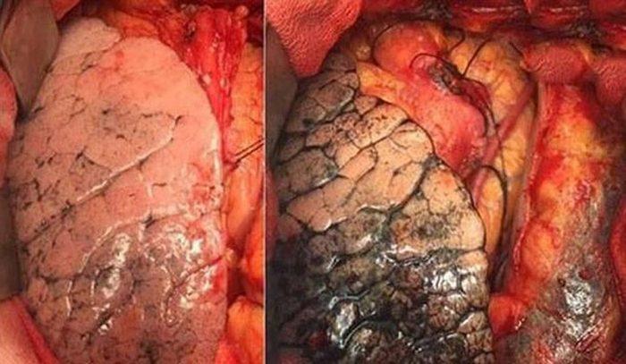Hình ảnh về ung thư phổi khiến nhiều người giật mình
