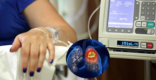 Hóa trị đối với bệnh ung thư phổi