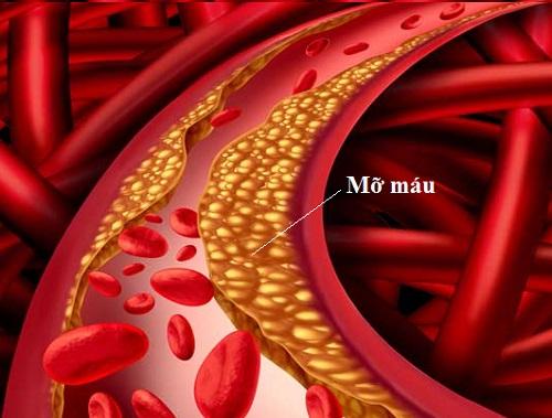 Mỡ máu cao cản trở lưu thông máu