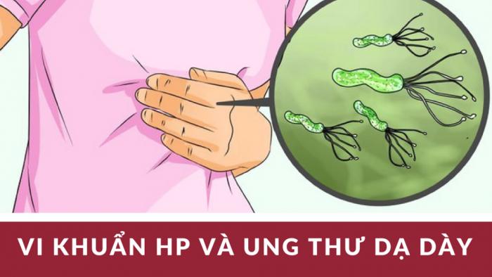 Mối liên hệ giữa khuẩn Hp và ung thư dạ dày
