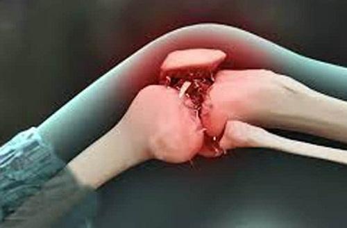 Bức xạ ion một trong những nguyên nhân dẫn đến ung thư xương