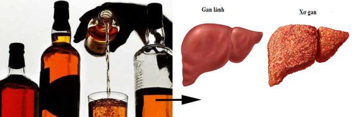 Rượu bia là nguyên nhân chính gây xơ gan