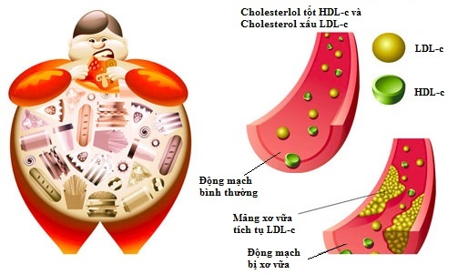Ăn quá nhiều chất béo là một trong những nguyên nhân gây mỡ máu cao