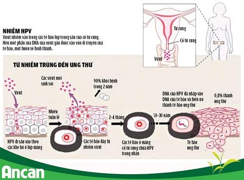 Nguyên nhân ung thư cổ tử cung bạn nên đề phòng