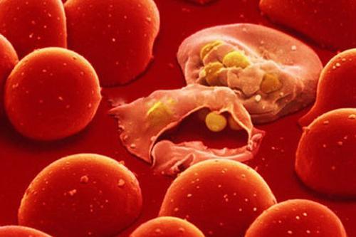 Ung thư máu do lượng bạch cầu tăng đột biến