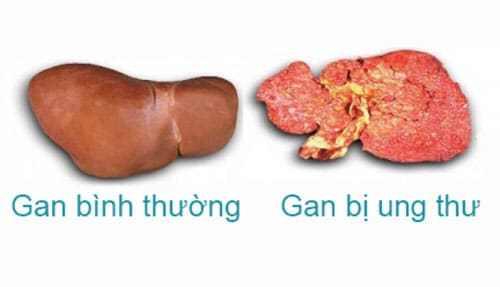 Hình ảnh bệnh ung thư gan - Triệu chứng bệnh ung thư gan