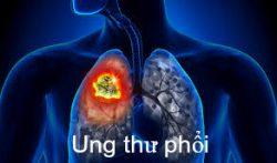 Ung thư phổi là một trong những bệnh ung thư thường gặp ở phụ nữ