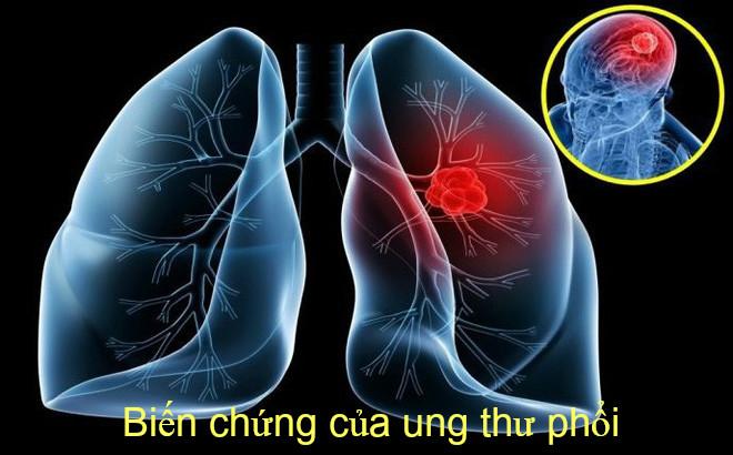 Những biến chứng của bệnh ung thư phổi vô cùng nguy hiểm