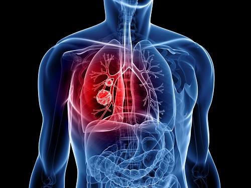 Ung thư phổi là bệnh lý vô cùng nguy hiểm ảnh hưởng tính mạng con người