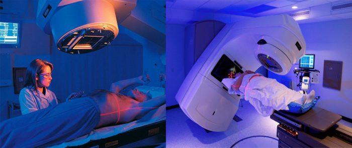Xạ trị giúp điều trị ung thư thực quản