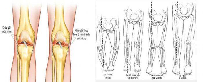 Sự thay đổi cấu trúc xương tiềm ẩn nguy cơ gây bệnh K xương