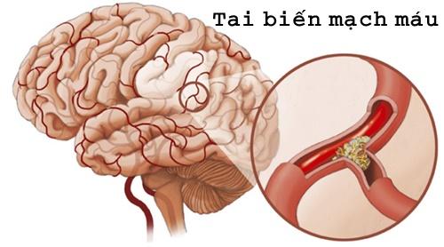 Tai biến mạch máu não là căn bệnh nguy hiểm có nguy cơ tử vong chiếm tỷ lệ cao