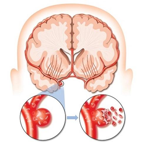 Mạch máu não vỡ ra sẽ dẫn đến tình trạng xuất huyết não