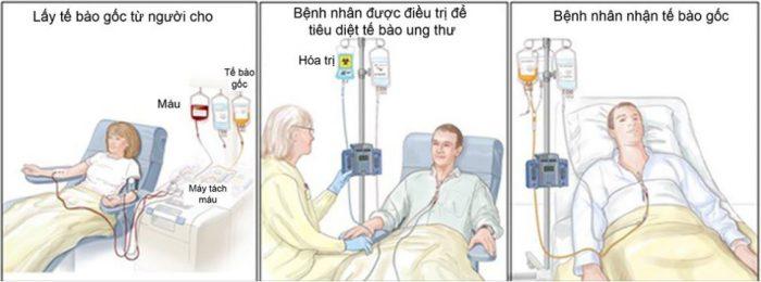 Tế bào gốc chữa bệnh ung thư máu? Thực hư thế nào?
