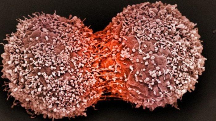 Tế bào gốc ung thư hình thành do nhiều yếu tố của môi trường