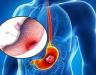 Thời gian sống của bệnh ung thư dạ dày ở mỗi giai đoạn là bao lâu?