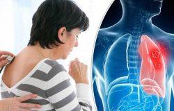 Chế độ dinh dưỡng đặc biệt cho người bị ung thư phổi mà bạn nên tuân thủ