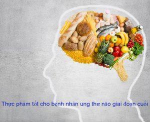 Bệnh nhân ung thư não giai đoạn cuối cần chú ý chế độ dinh dưỡng