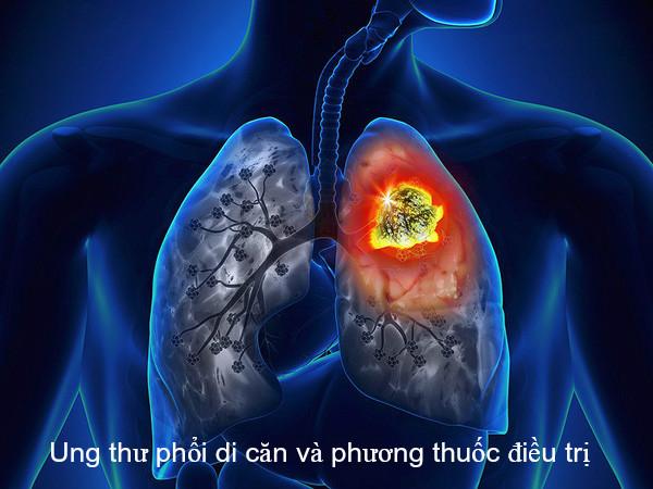 Ung thư phổi di căn thường có tỷ lệ tử vong cao